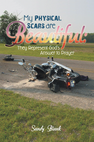 My Physical Scars are Beautiful:: They Represent God's Answer to Prayer - eBook  -     By: Sandy Blank
