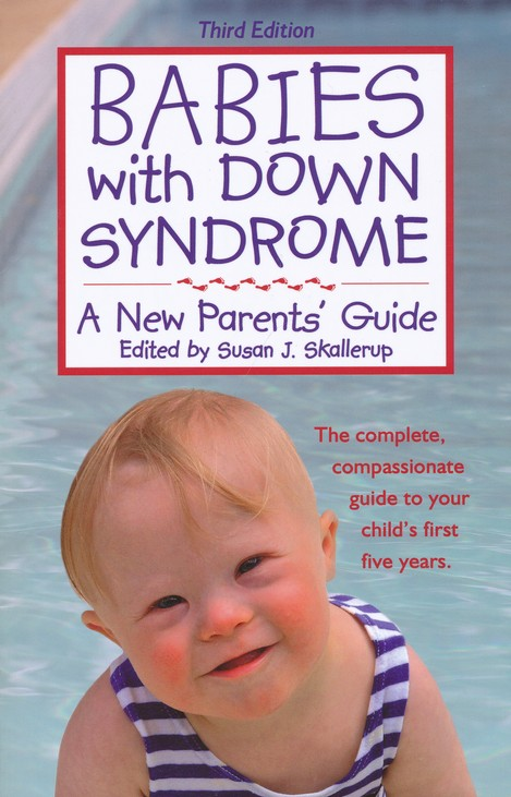 babies with down syndrome a new parents guide third edition rh christianbook com Down Syndrome Parent Support Groups Down Syndrome Education for Parents